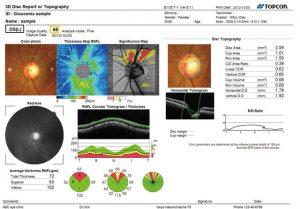 Skan OCT wide field 12 mm x 9 mm umożliwia obrazowanie i topografię tarczy nerwu wzrokowego i plamki na jednym skanie. Maestro generuje wysokiej jakości B-skany utworzone z 50.000 A-skanów na sekundę.
