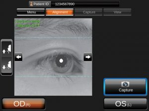 Topcon 3D OCT-1 Maestro daje unikalną możliwość uzyskania jednocześnie obrazów OCT i kolorowego zdjęcia siatkówki za jednym dotknięciem palca. Zdjęcie siatkówki jest wykonywane w trybie true color, które zapewnia krystalicznie czysty i detaliczny obraz. 3D OCT-1 Maestro generuje również obrazy bezczerwienne.